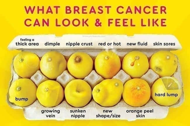 breast cancer - what it can look like